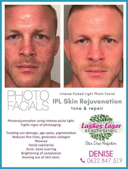 Lashes Laser Beauty Clinic - Amanzimtoti  Projects, photos